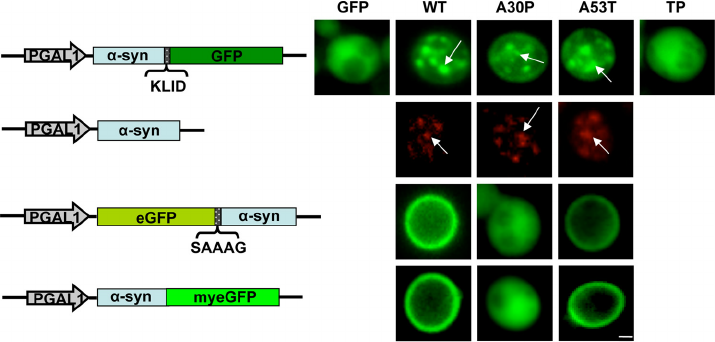 A30P-synuclein-aggregate-formation-upon-high-copy-expression-in-yeast-Live-cell (1).png